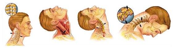 Головокружение при травмах шеи и головы